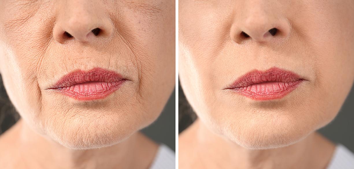 Skin Booster Treatments - Daisychain Aesthetics Glasgow